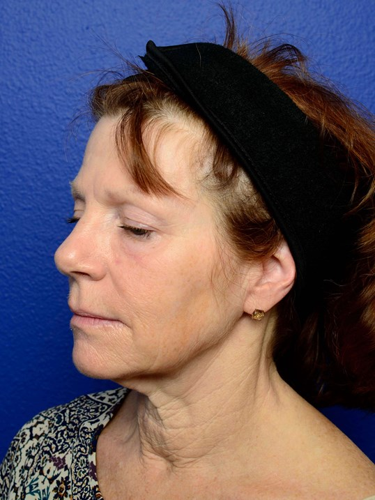 Neck Lift & Brow Lift Before