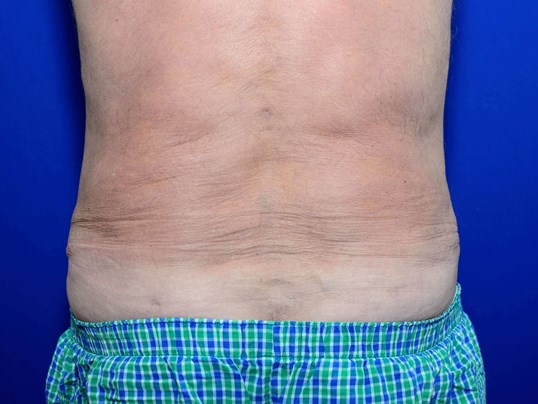 Lower Body Liposuction After