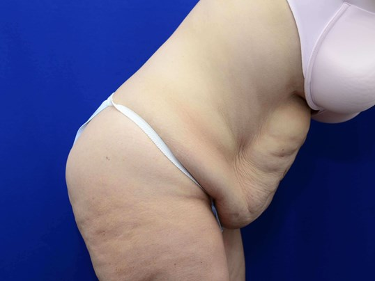 Tummy Tuck after Weight Loss Before