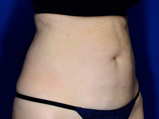 Coolsculpting to Abdomen After