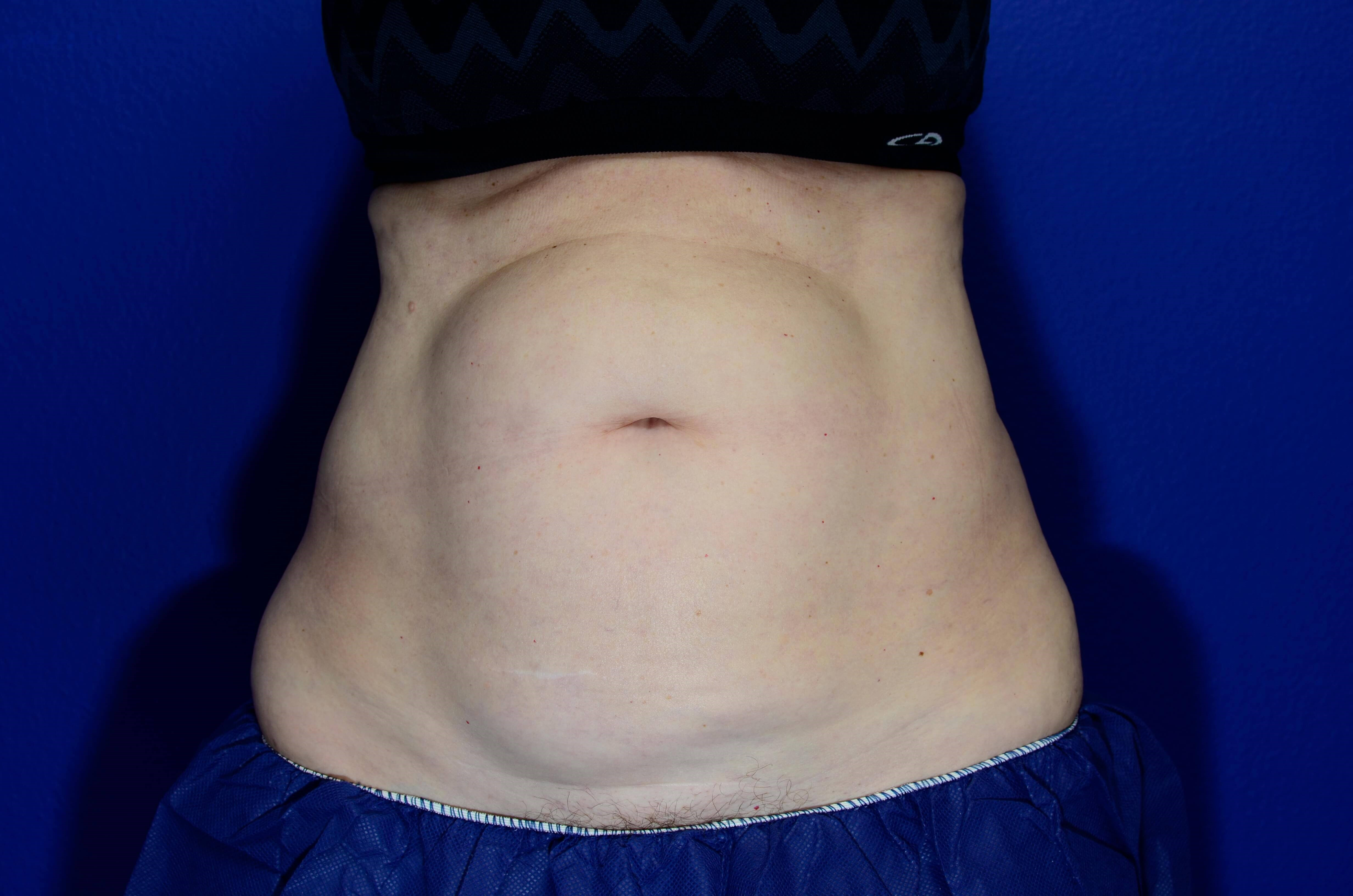 Coolsculpting of Abdomen Before