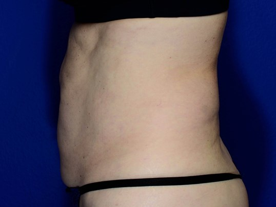 Coolsculpting of Abdomen After