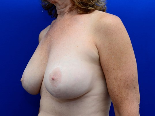 Breast Revision & Lift Before
