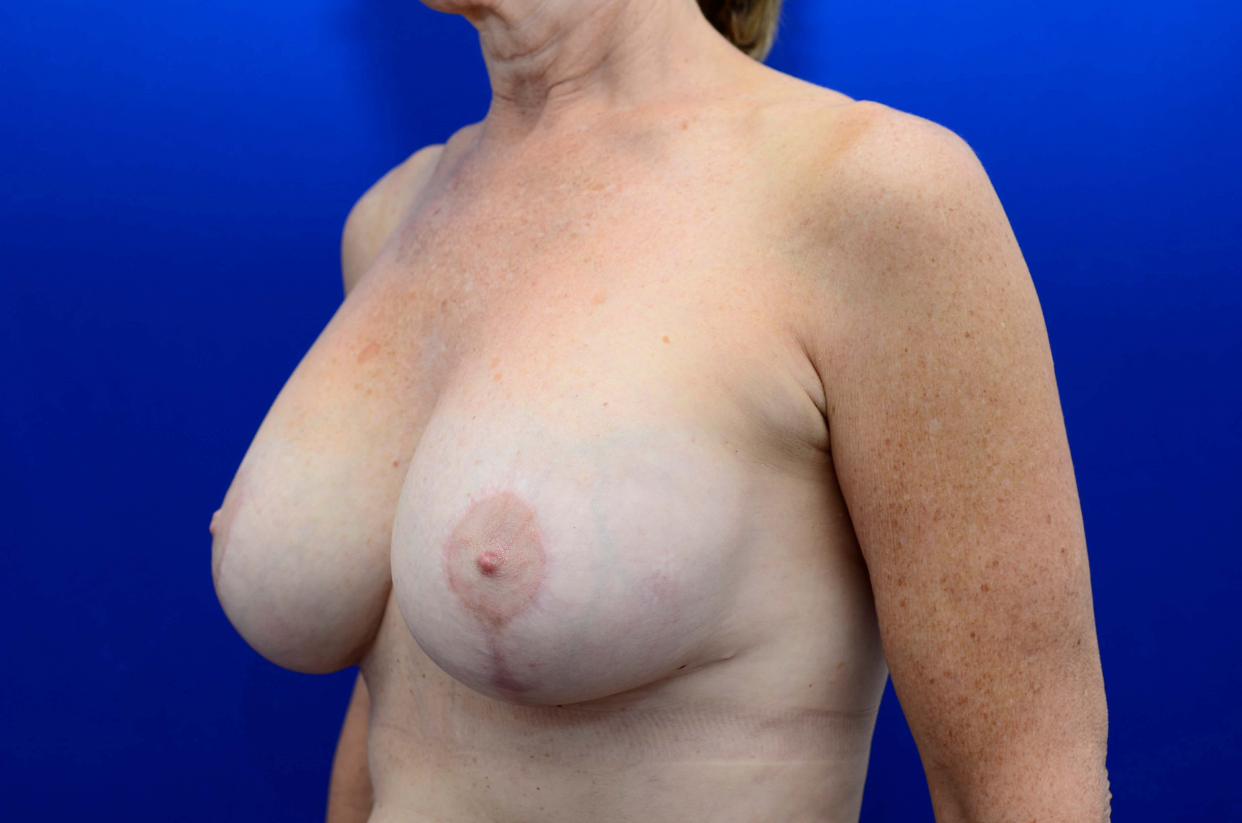 Breast Revision & Lift After