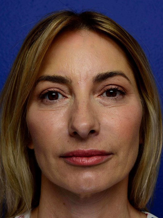 Midface Injections with Voluma After