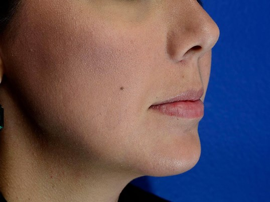 Cheeks & Nasolabial Folds After