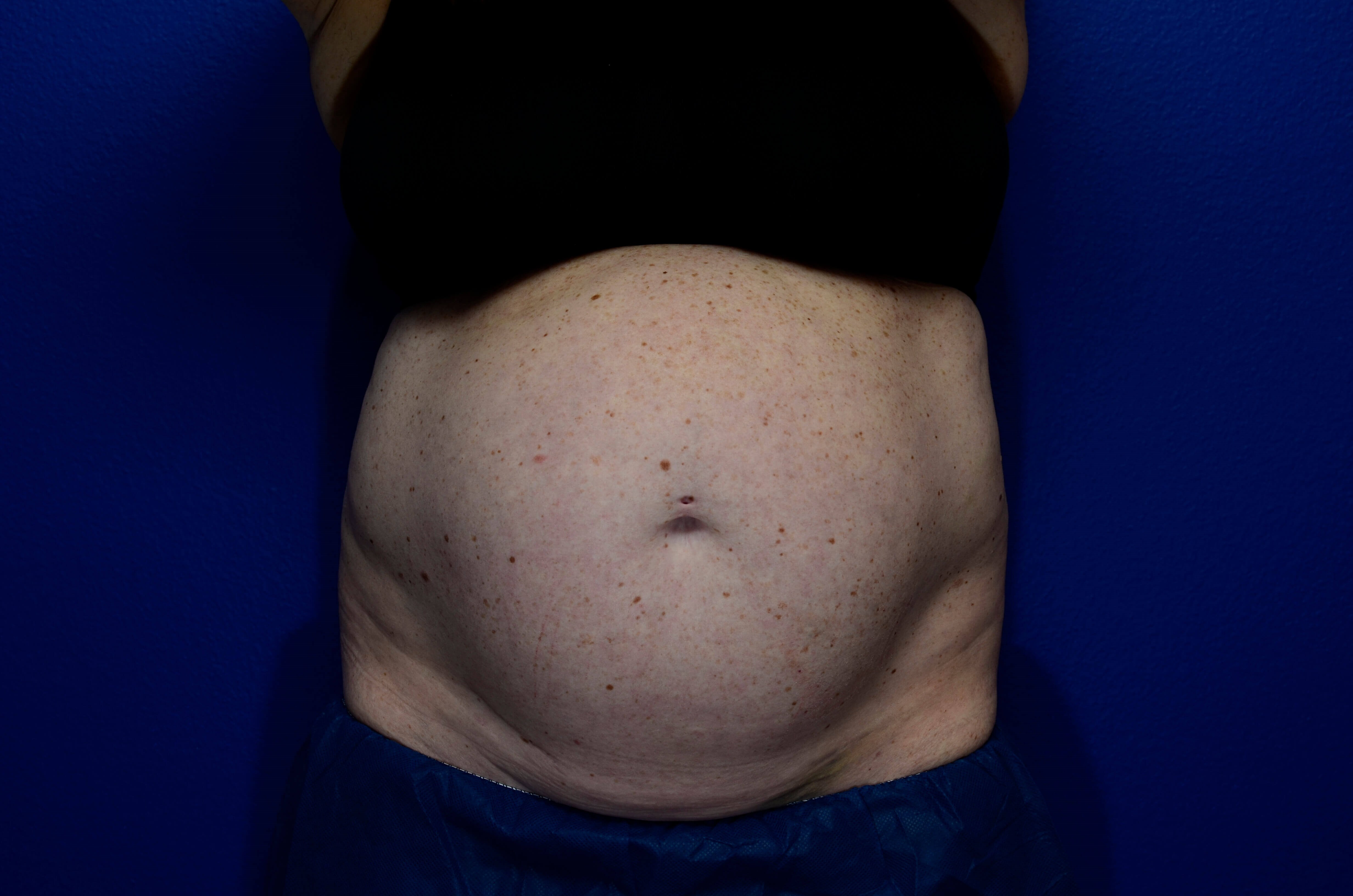 Coolsculpting to Abdomen Before