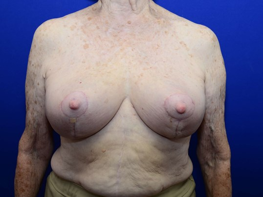 Breast Lift without Implants After