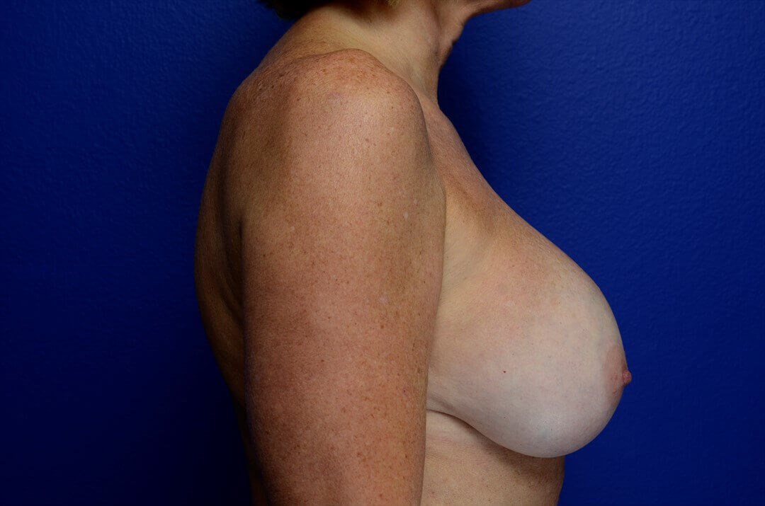 Breast Revision & Mastopexy Before