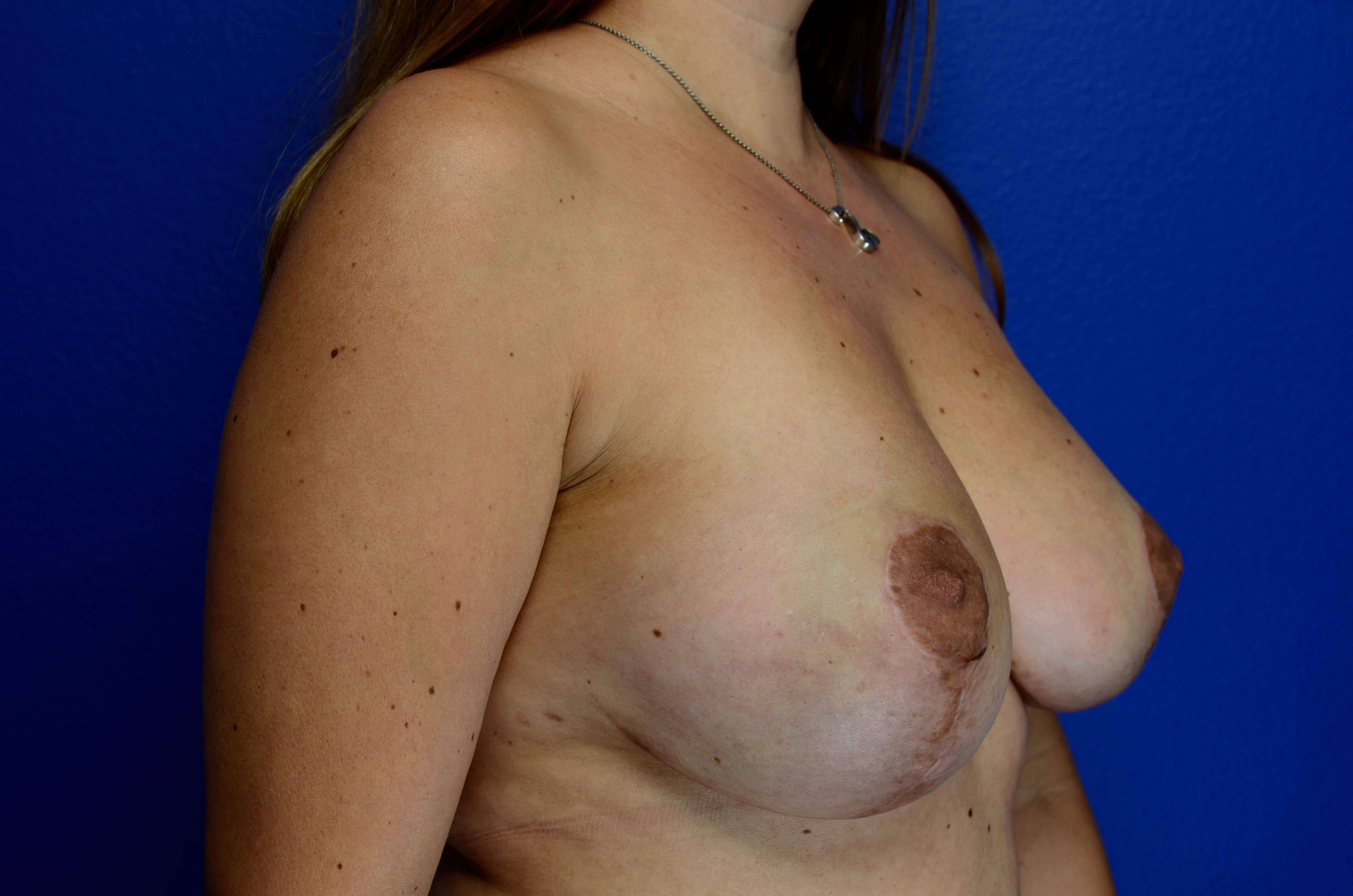 Breast Revision & Mastopexy After