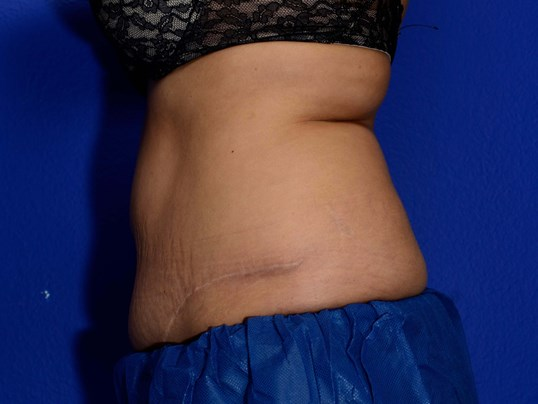 Coolsculpting Before